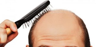 10 tips mot hårtap