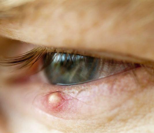 10 tips mot sti på øyet