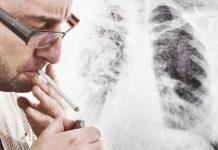 Ny test avslører lungekreft