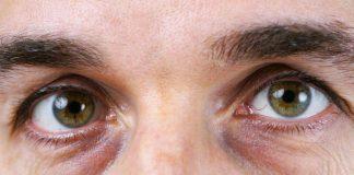 Bli kvitt ringer under øynene