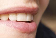 Tannbleking: Gjenopprett ditt hvite smil